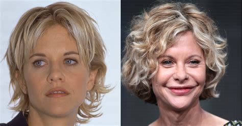 Post Plastic Surgery Meg Ryan Hairstyles | meg ryan plastic surgery disasters purple clover