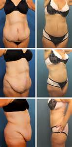 How Much Does A Tummy Tuck Cost In Tx Tummy Tuck Ta Fl Abdominoplasty Lakeland Riverview