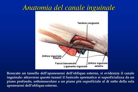 anello inguinale interno ppt ernia inguinale powerpoint presentation id 2920007