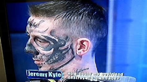mad dog tattoo removal kyle