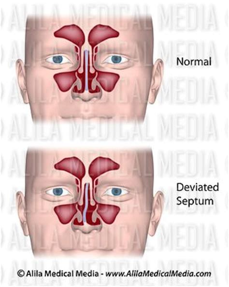 deviated septum diagram alila media diving medicine images