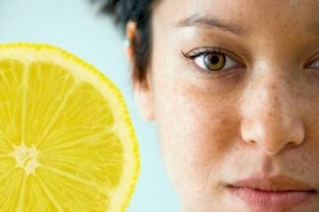 10 Ways To Get Rid Of Freckles by 10 Ways To Get Rid Of Freckles On Fast And Naturally