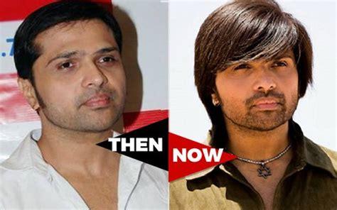 himesh reshammiya hair transplant the hair loss tales of bollywood