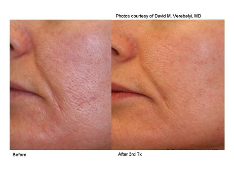 Treatment Laser Pores laser genesis skin rejuvenation for glowing skin
