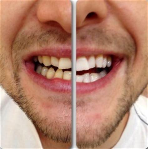 teeth whitening      puresmile australia
