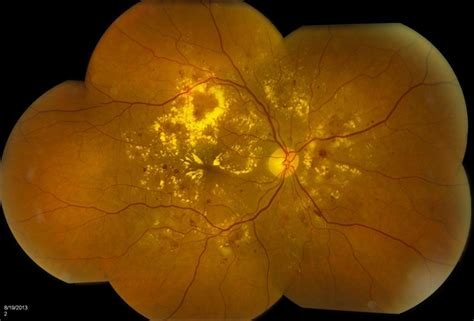 background diabetic retinopathy background diabetic retinopathy retina image bank
