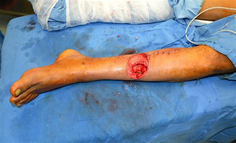 electrical problems surgery pathological fracture tibia post electrical contact burn