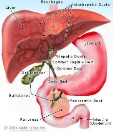 Gallstones: Symptoms, Causes & Treatment