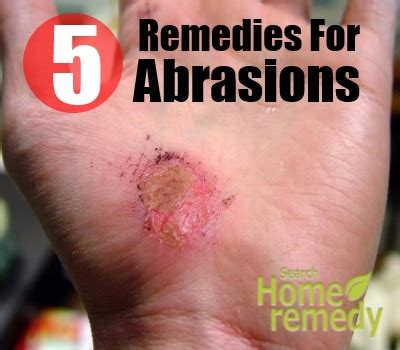how to heal rug burn on fast top 5 home remedies for abrasions treatments and cure for abrasions search home remedy