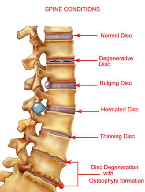 spinal discs diagram middle lower back vinu