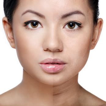 ruddy complexion pictures uneven and ruddy skin tone