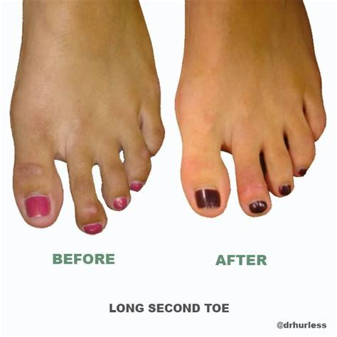 Mba Implant Surgery Foot Problems by Before And After Is Your Second Toe The Same Length Or A