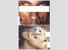 Morphological Changes in HIV-1 Infected Patients on ... Hiv Patient Face