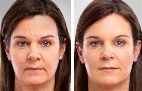 peau prombleme anti age solution