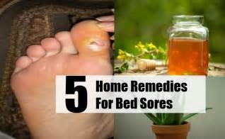 5 top home remedies for bed sores natural remedy