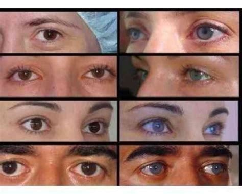permanent eye color change your eye color permanently