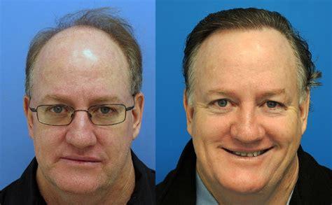 celebrity hair transplants before after celebrity hair transplants before and after designpapers