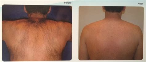 brazilian laser hair removal full brazilian pubic hair full bikini laser hair removal