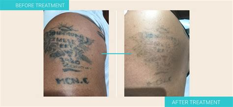 tattoo removal australia 1 laser removal sydney removal institute