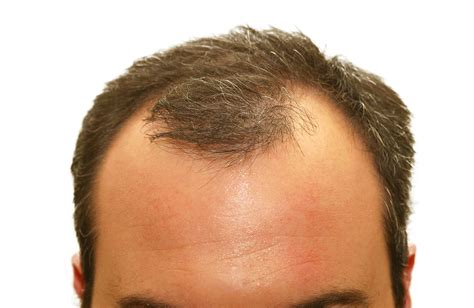 male pattern hair loss emedicine seeing more scalp than you prefer hair loss treatment