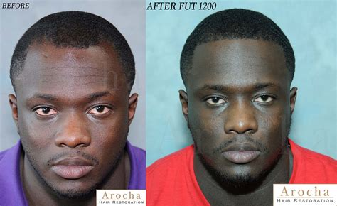 hairline restoration for black men ethnic hair restoration treatment dallas l san antonio