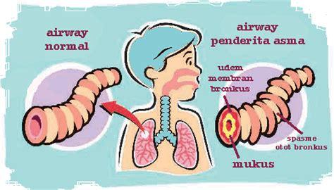 Asma Asma Asma Asma Obat Asma Penyakit Asma Ace Maxs cara menyembuhkan asma akut secara alami