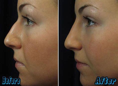 perms after surgery non surgical nose job http plasticsurgeryfact com