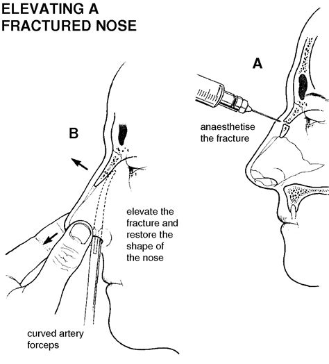 nose treatment nose fracture causes symptoms treatment nose fracture