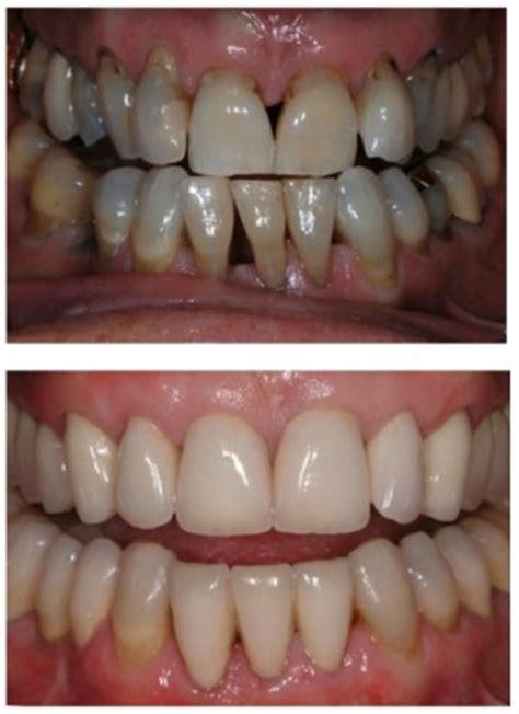 yellow teeth discoloured teeth advanced dentistry