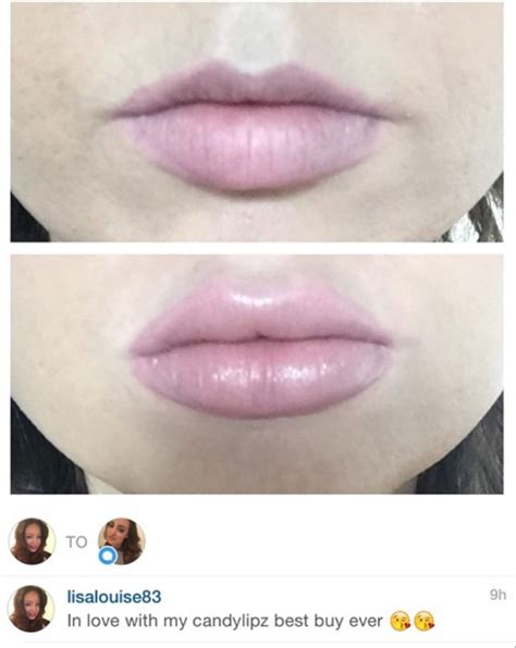 My Top 5 Lip Plumpers by Candylipz Lip Plumping Reviews Testimonials 7 Candylipz