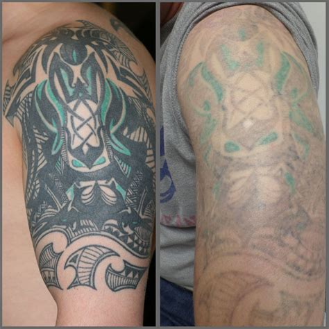 laser removed tattoos before and after laser removal modern birmingham