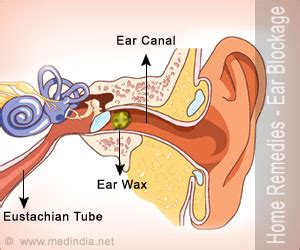 home remedies for clogged ears home remedies for ear blockage simple tips to curb ear