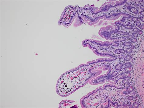 Hmb 45 Pathology Outlines by Anabible Dr Michels Pseudom 233 Lanose Duod 233 Nale Impression