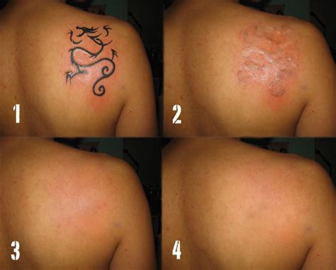 what to expect from laser tattoo removal get my tattoo