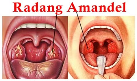 Obat Amandel Herbal Untuk Anak obat herbal penyakit amandel untuk anak addy sumoharjo