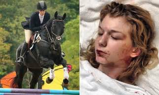 abby bedwell presumed brain dead after horse kicks her in abby bedwell presumed brain dead after horse kicks her in