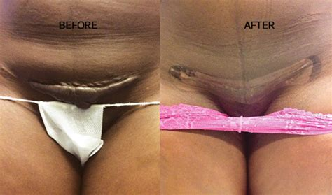 get rid of c section scar c section scar www pixshark com images galleries with
