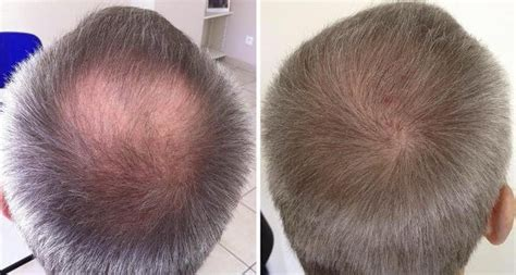 is sage and oatmeal good for bald spot in head to help hair grow how to regrow hair in bald spots regrow hair