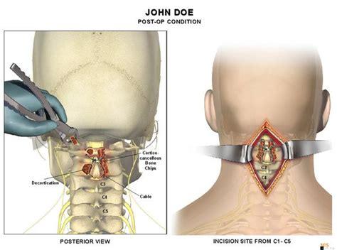 copy   level   posterior cervical fusion medical art works