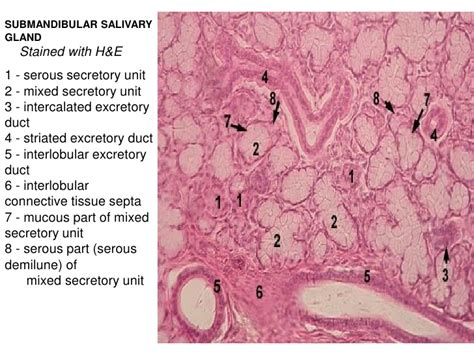 and east found on mixed histology of the cavity