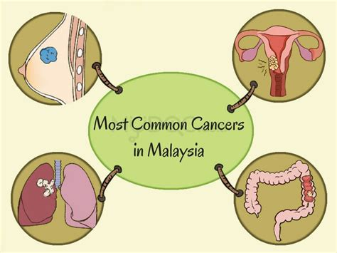 cervical cancer diagram diagram of cervix cancer images how to guide and refrence