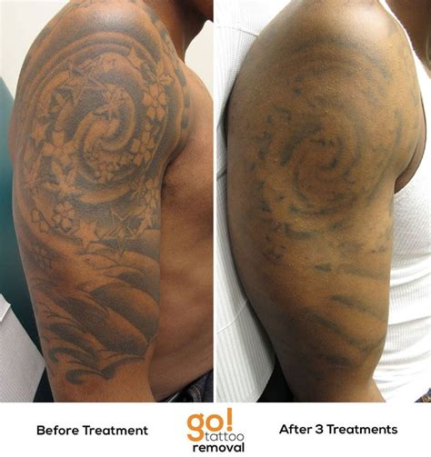 tattoo removal on dark skin after 3 laser removal treatments there is