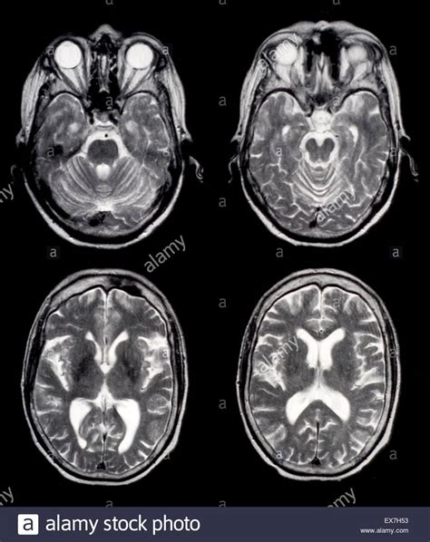 Mri Pictures Of Brain