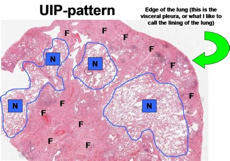 uip pattern pulmonary fibrosis community participation program for pulmonary fibrosis
