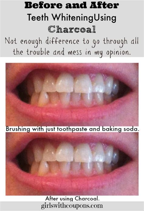 teeth whitening  home wcharcoal  work