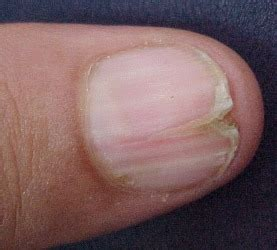 split nail nails are the window to your health dr thind
