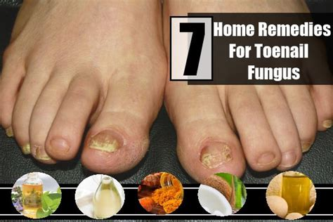 home remedies for foot fungus 7 remedies for toenail fungus treatments cure