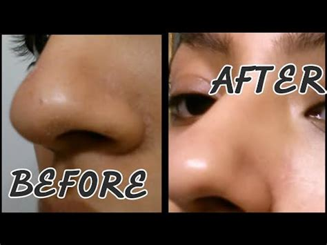 i got rid of all my deep rolling acne scars with msm cream get rid of blackheads open pores at home 2 step