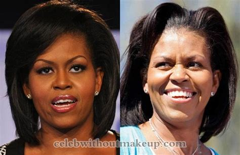 michelle obama without hair michelle obama eye surgery michelle obama eye surgery