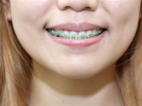 braces teeth how to clean teeth with braces 11 steps with pictures